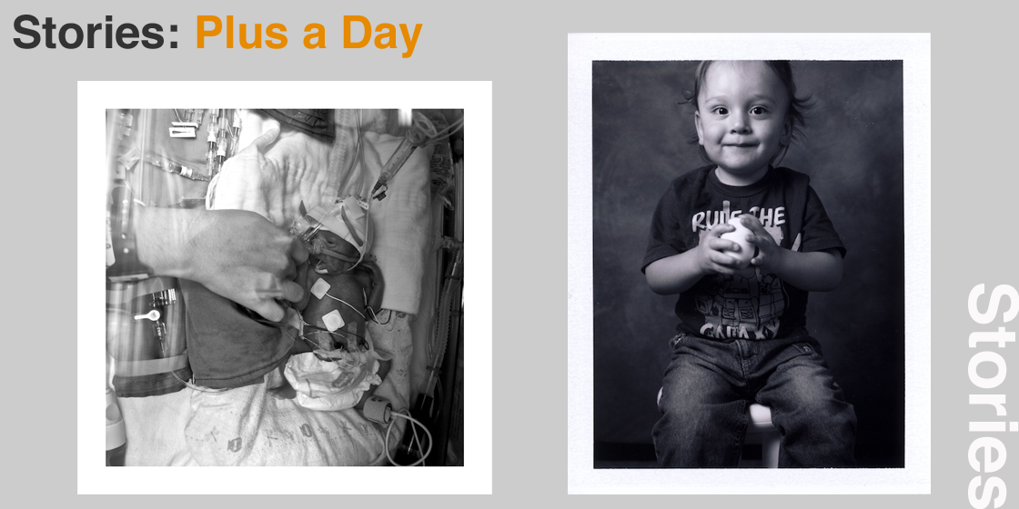 Plus a Day: from 13 weeks early to two years on.
